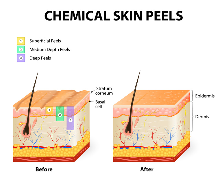 The perfect derma peel which type of chemical peel is right for you - Prieel structuur ...